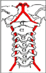 Decreased Vertebral Artery Hemodynamics in Patients with Loss of Cervical Lordosis-Med Sci Monit. 2016