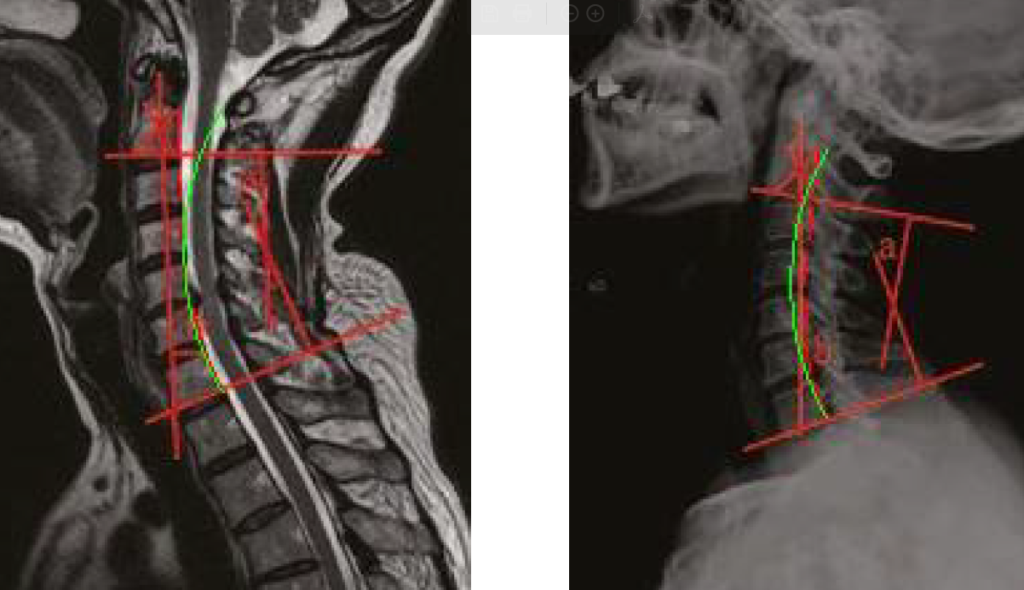 MRI, Spine Vs Prone and Disc Herniations.